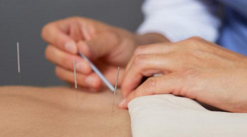 accupuncture-picture